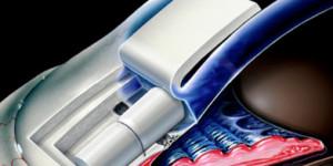 AquaFlow: Cataracts and Glaucoma