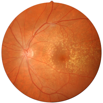 retina fundus photo