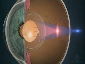 Toric IOLs designed to address astigmatism